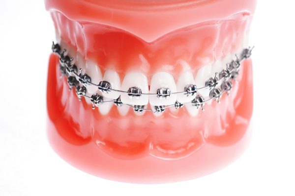Orthodontic and Orthopedic Appliances