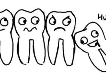 4 Signs Your Wisdom Tooth Needs To Go