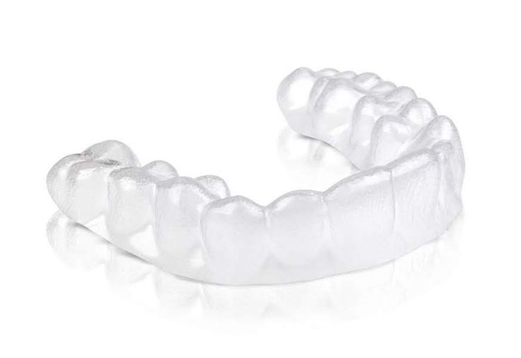 4 Mistakes To Avoid With Invisalign
