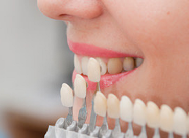 Difference Between Porcelain Veneers And Dental Crowns