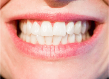 Why should you go for professional teeth whitening