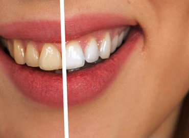 How Can You Get Rid Of Teeth Stains