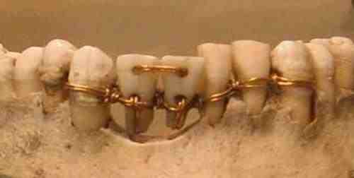 5 Interesting facts about ancient dentistry