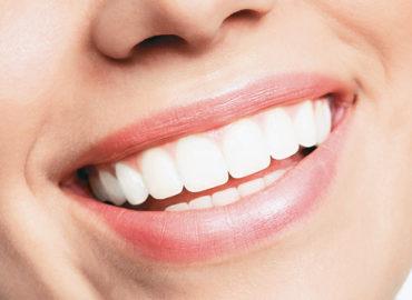 Fast, Safe & Effective Teeth Whitening In Edmonton