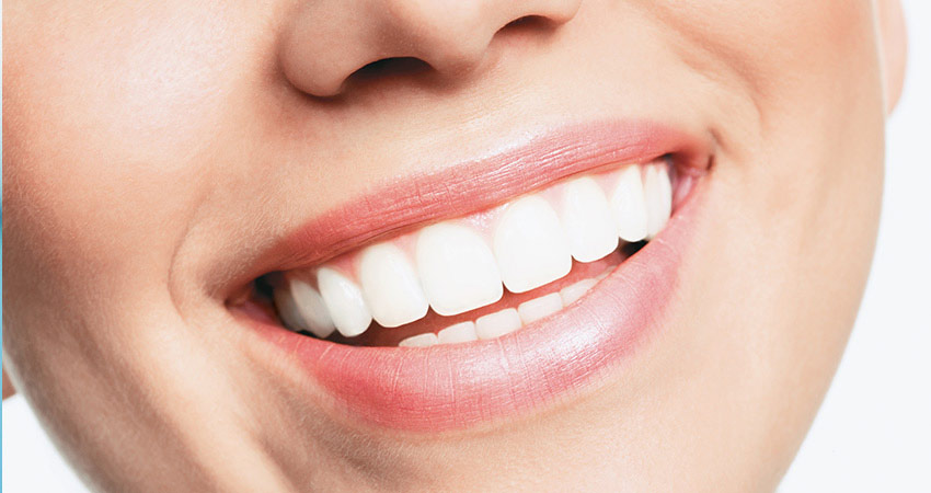 Fast, Safe & Effective Teeth Whitening In Edmonton